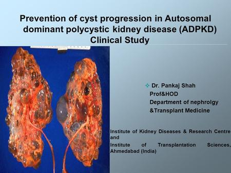  Dr. Pankaj Shah Prof&HOD Department of nephrolgy &Transplant Medicine Prevention of cyst progression in Autosomal dominant polycystic kidney disease.