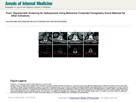 Date of download: 6/21/2016 From: Opportunistic Screening for Osteoporosis Using Abdominal Computed Tomography Scans Obtained for Other Indications Ann.