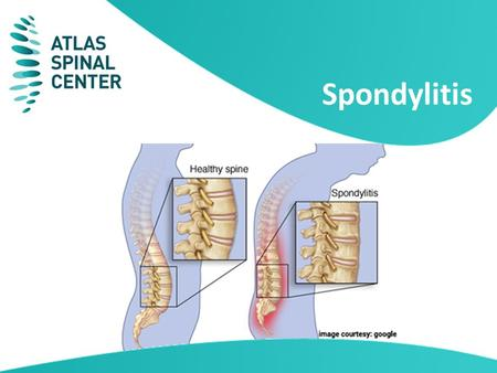 Spondylitis. Spondylitis is one of the most common causes of chronic back ache and pain in the neck, making it very difficult for a patient to live a.