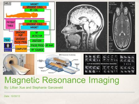 Date: 10/30/13 Magnetic Resonance Imaging By: Lillian Xue and Stephanie Ganzeveld.