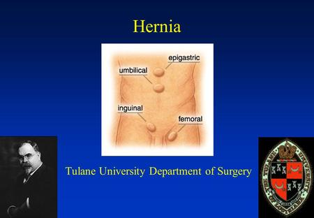 Hernia Tulane University Department of Surgery. What is a Hernia? Congenital or Acquired defect in the abdominal wall Herniorrhaphy is one of the most.