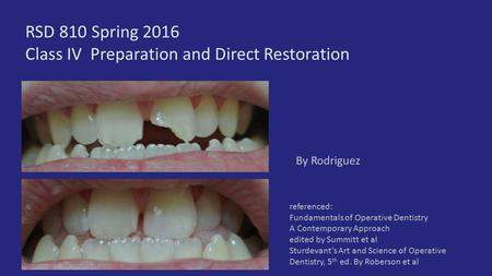 RSD 810 Spring 2016 Class IV Preparation and Direct Restoration By Rodriguez referenced: Fundamentals of Operative Dentistry A Contemporary Approach edited.