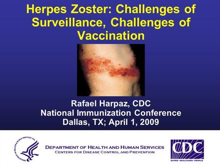 Herpes Zoster: Challenges of Surveillance, Challenges of Vaccination Rafael Harpaz, CDC National Immunization Conference Dallas, TX; April 1, 2009.