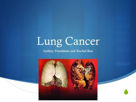  Lung Cancer Sydney Freedman and Rachel Rea. Causes  No exact cause  Smokers and non-smokers can get lung cancer  Smoke causes cancer by damaging.