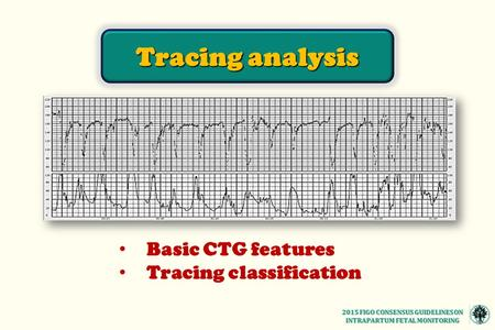 Basic CTG features Tracing classification Tracing analysis 2015 FIGO CONSENSUS GUIDELINES ON INTRAPARTUM FETAL MONITORING.