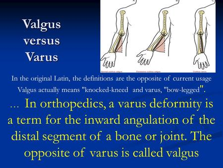 Valgus versus Varus In the original Latin, the definitions are the opposite of current usage Valgus actually means knocked-kneed and varus, bow-legged.