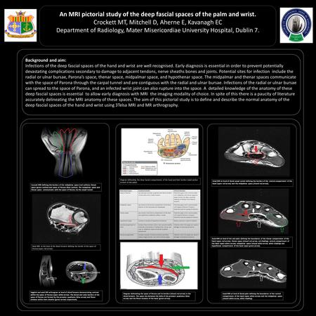An MRI pictorial study of the deep fascial spaces of the palm and wrist. Crockett MT, Mitchell D, Aherne E, Kavanagh EC Department of Radiology, Mater.