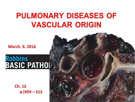 March. 6. 2016 Ch. 12 p (459 – 512 PULMONARY DISEASES OF VASCULAR ORIGIN.