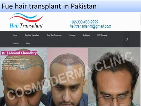 Fue hair transplant in Pakistan. About us Fue hair transplant clinic Pakistan Follicular Unit Extraction or Fue hair transplant in Pakistan is a most.