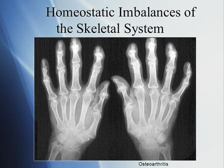 Homeostatic Imbalances of the Skeletal System Osteoarthritis.