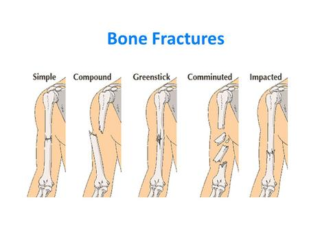 Bone Fractures. Types of Fractures 1. Simple (closed): bone breaks cleanly but does not penetrate skin. 2. Compound (open): broken ends of bone protruding.