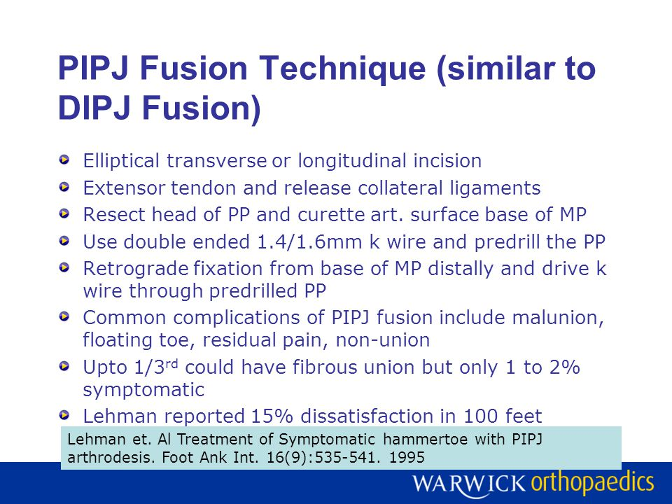 Alternate Methods PIPJ Excisional arthroplasty Similar to PIPJ fusion but EDL tendon interposed between PP & MP and sutured to distal slip in tension No k wire fixation Maintains mild PIPJ flexion rather straight Alternate Fixation for PIPJ fusion Stay Fuse implant Smart toe implant