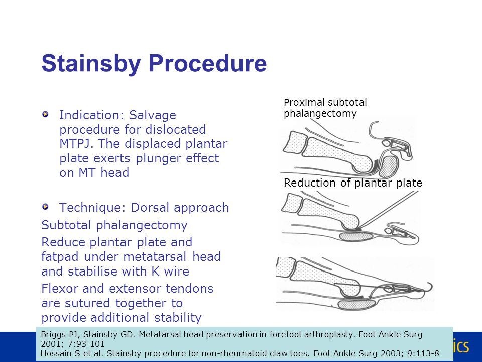 Lesser Metatarsal head Resection Hoffman Fowler procedure – Dorsal & Plantar incisions