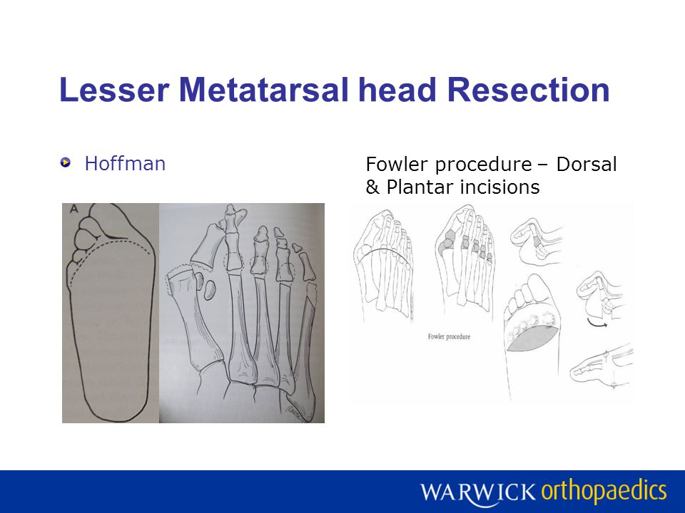 Lesser Metatarsal head Resection Clayton – Dorsal incision Kates Lipscomb- Webspace incisions