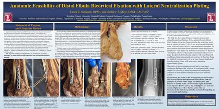 Anatomic Feasibility of Distal Fibula Bicortical Fixation with Lateral Neutralization Plating Laura E. Sansosti, DPM a, and Andrew J. Meyr, DPM FACFAS.