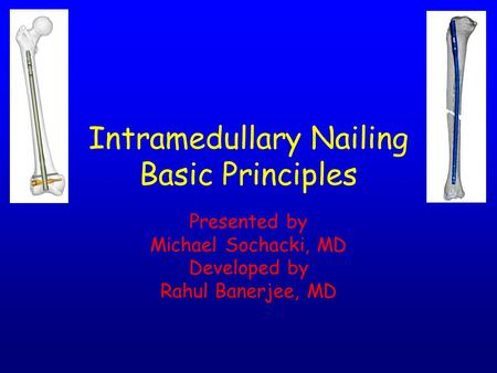 Intramedullary Nailing Basic Principles Presented by Michael Sochacki, MD Developed by Rahul Banerjee, MD.