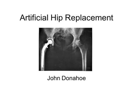 Artificial Hip Replacement John Donahoe. What is it? Hip Replacement Surgery is the most common orthopedic procedure today –Orthopedics The branch of.
