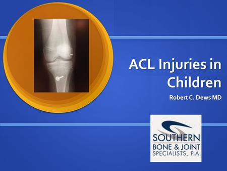 ACL Injuries in Children Robert C. Dews MD. Incidence Increase in sports participation and level of competition among younger age groups (Title IX doubled.