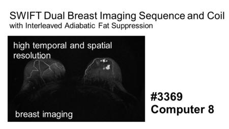 SWIFT Dual Breast Imaging Sequence and Coil with Interleaved Adiabatic Fat Suppression high temporal and spatial resolution #3369 Computer 8 breast imaging.