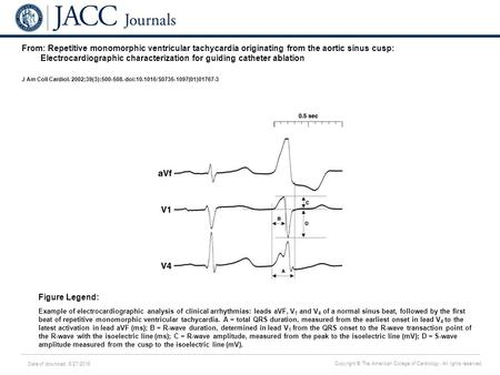 Date of download: 6/27/2016 Copyright © The American College of Cardiology. All rights reserved. From: Repetitive monomorphic ventricular tachycardia originating.