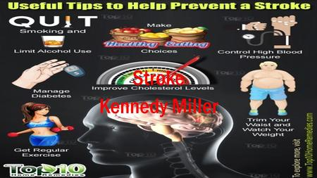 Stroke Kennedy Miller. Causes: A stroke may be caused by a blocked artery (ischemic stroke) or the leaking or bursting of a blood vessel (hemorrhagic.