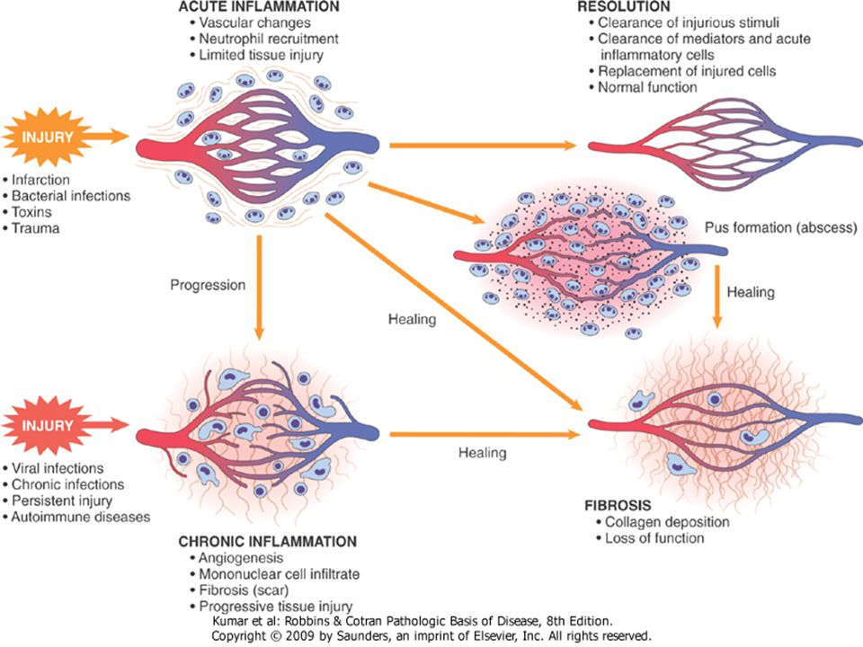 Morphologic Patterns of Acute Inflammation Morphologic hallmarks of acute inflammation ◦ Dilation of small blood vessels ◦ Slowing of blood flow ◦ Accumulation of leukocytes and fluid  Extravascular tissue