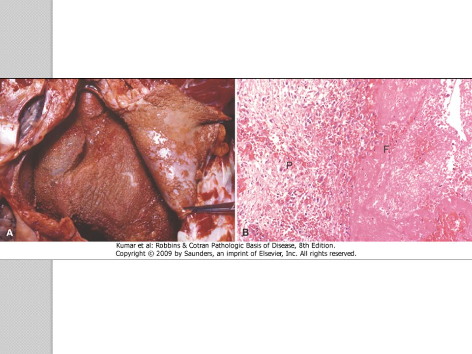 Suppurative Inflammation Large amounts of purulent exudate ◦ Neutrophils, liquefactive necrosis, and edema fluid ◦ Bacteria (e.g., staphylococci) produce this localized suppuration  Pyogenic (pus-producing) bacteria Example ◦ Acute appendicitis