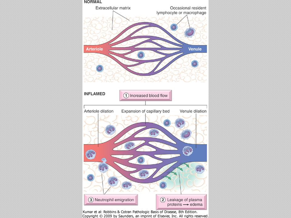Stimuli For Acute Inflammation Infections (bacterial, viral, fungal, parasitic) and microbial toxins ◦ Most common and medically important causes Tissue necrosis ◦ Ischemia ◦ Trauma, ◦ Physical and chemical injury Foreign bodies Immune reactions