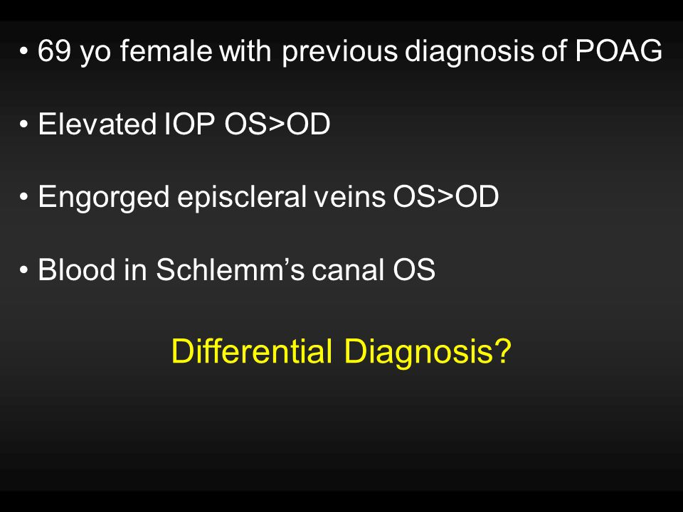 Differential Diagnosis 1.Venous Obstruction a.Thyroid Ophthalmopathy b.