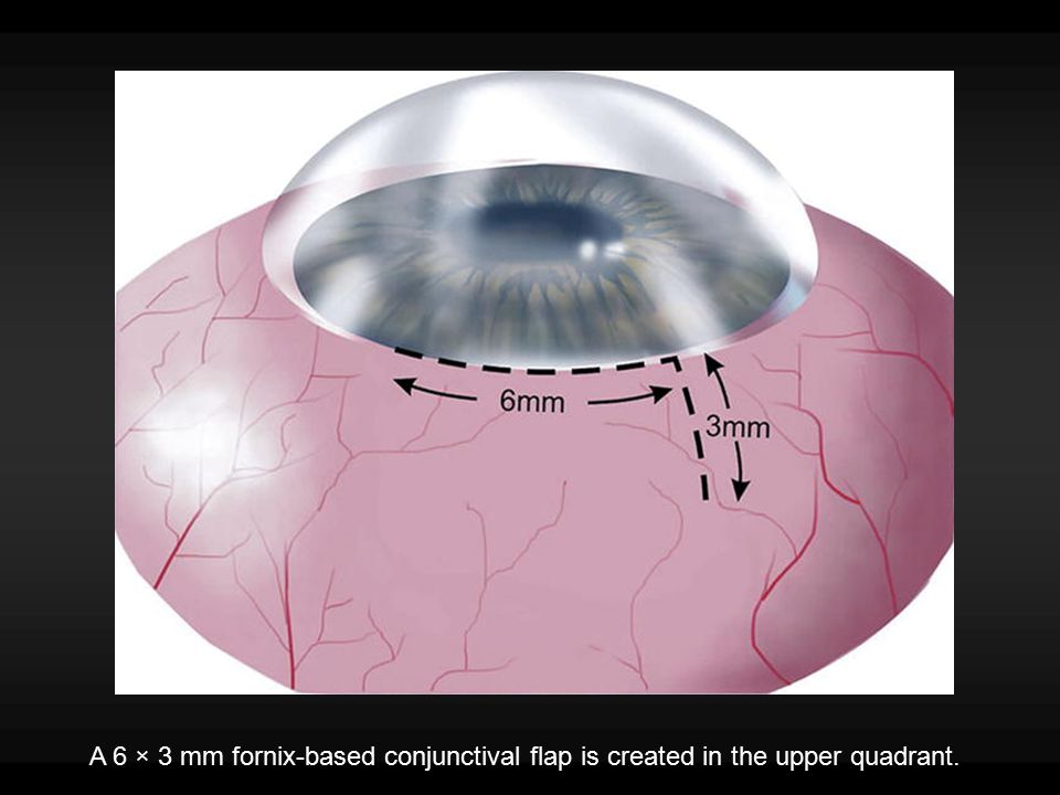 A 50% depth, 5 × 5 mm limbal-based scleral flap is created.