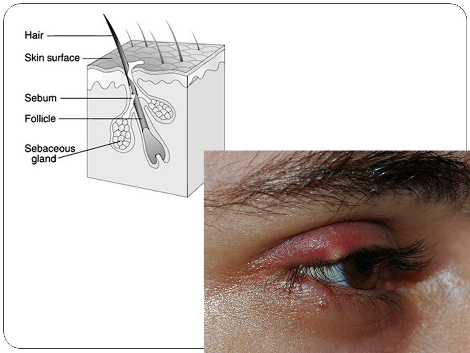 Accessory cont… Conjunctiva Membrane over eye Very sensitive Conjunctivitis AKA: Pinkeye Damage/irritation to conjunctiva