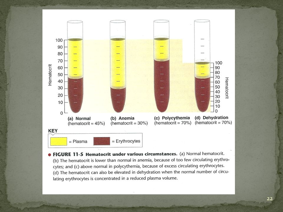 Effect of Anemia In Anemia, blood viscosity is decreased to 1.5 times of water [normal viscosity 2.5 – 3 times of water].