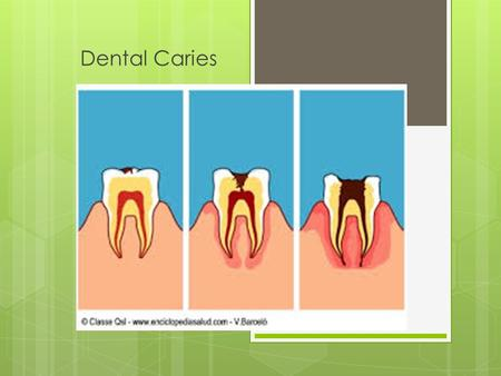 Dental Caries. Introduction  Dental caries (tooth decay) is an infectious bacterial disease that has plagued human beings since the beginning of recorded.