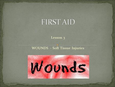 Lesson 3 WOUNDS – Soft Tissue Injuries. the most common injuries (trauma) in a first aid setting are soft injuries with bleeding & shock Result in a wound.