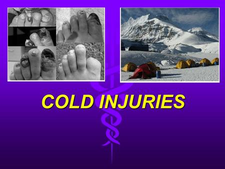 COLD INJURIES. Epidemiology Caused by the inability to physiologically compensate for cold that produces injury. Duration of exposure, humidity, wind,