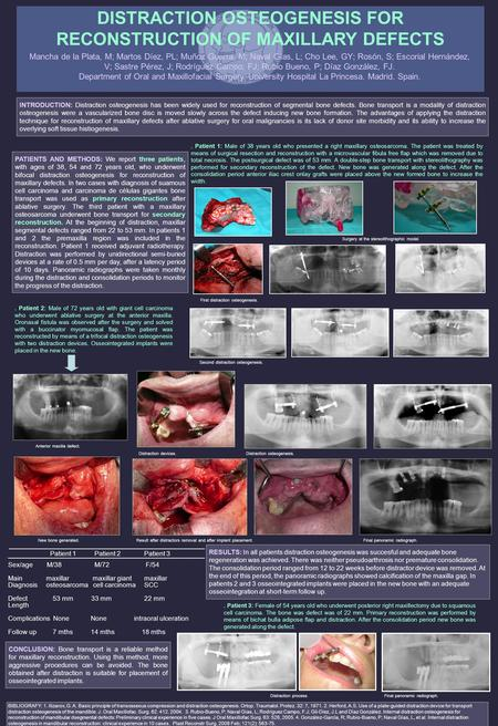 DISTRACTION OSTEOGENESIS FOR RECONSTRUCTION OF MAXILLARY DEFECTS Mancha de la Plata, M; Martos Díez, PL; Muñoz Guerra, M; Naval Gías, L; Cho Lee, GY; Rosón,