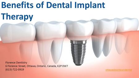 Benefits of Dental Implant Therapy Are you sad with your smile? Are your tooth hindering your day-to-day existence? The good news is that you don't have.