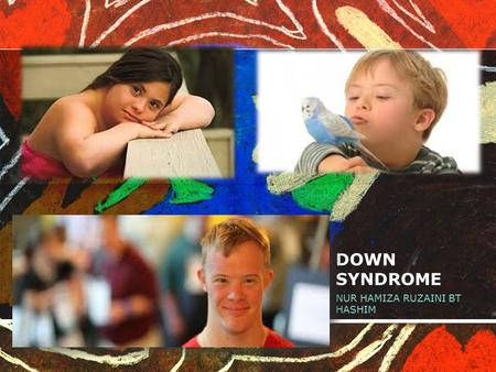 DOWN SYNDROME NUR HAMIZA RUZAINI BT HASHIM. WHAT IS DOWN SYNDROME Down syndrome is a genetic condition that causes delays in physical and intellectual.