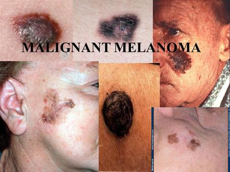 MALIGNANT MELANOMA. Outline Introduction Aetiology Types Invasion and Metastasis Risk Factors Diagnosis and Staging Treatment and Prevention.