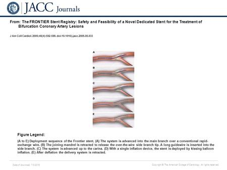 Date of download: 7/3/2016 Copyright © The American College of Cardiology. All rights reserved. From: The FRONTIER Stent Registry: Safety and Feasibility.