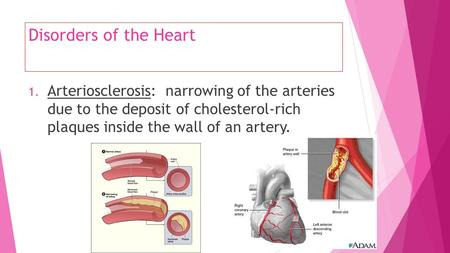 Disorders of the Heart 1. Arteriosclerosis: narrowing of the arteries due to the deposit of cholesterol-rich plaques inside the wall of an artery.