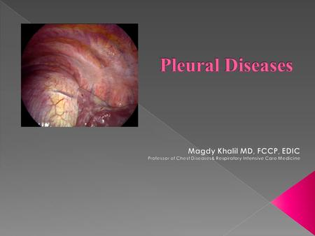  Pleural anatomy  Pleural physiology  Pleurisy  Pleural effusion  Pneumothorax  Asbestos-related pleural diseases  Pleural malignancies.