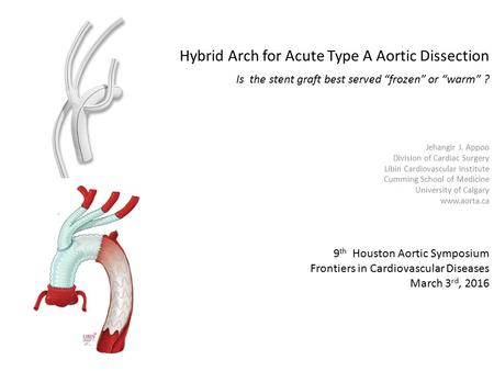 "Hybrid Arch for Acute Type A Aortic Dissection Is the stent graft best served ""frozen"" or ""warm"" ? Jehangir J. Appoo Division of Cardiac Surgery Libin."
