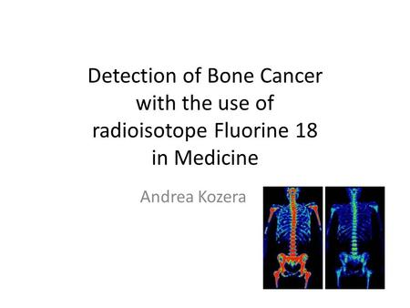 Detection of Bone Cancer with the use of radioisotope Fluorine 18 in Medicine Andrea Kozera.