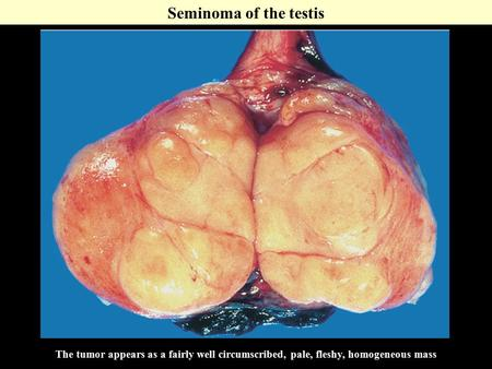 The tumor appears as a fairly well circumscribed, pale, fleshy, homogeneous mass Seminoma of the testis.