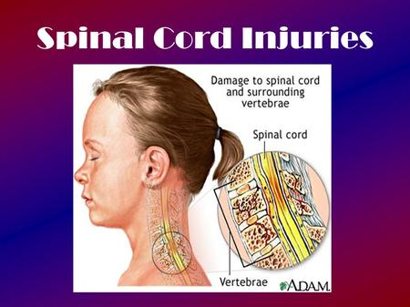 Spinal Cord Injuries. Reflex Testing Important medical diagnostic tool Weak, exaggerated, or absent reflex responses may indicate problems with portions.