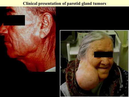 Clinical presentation of parotid gland tumors