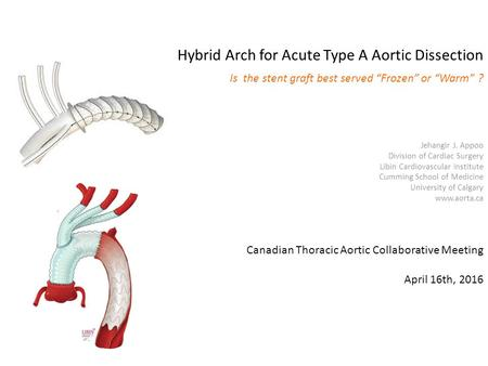 Hybrid Arch for Acute Type A Aortic Dissection