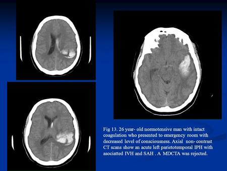 Fig 13. 26 year- old normotensive man with intact coagulation who presented to emergency room with decreased level of consciousness. Axial non- contrast.