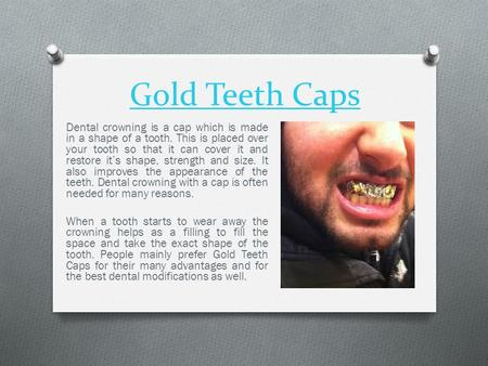 Gold Teeth Caps Dental crowning is a cap which is made in a shape of a tooth. This is placed over your tooth so that it can cover it and restore it's shape,